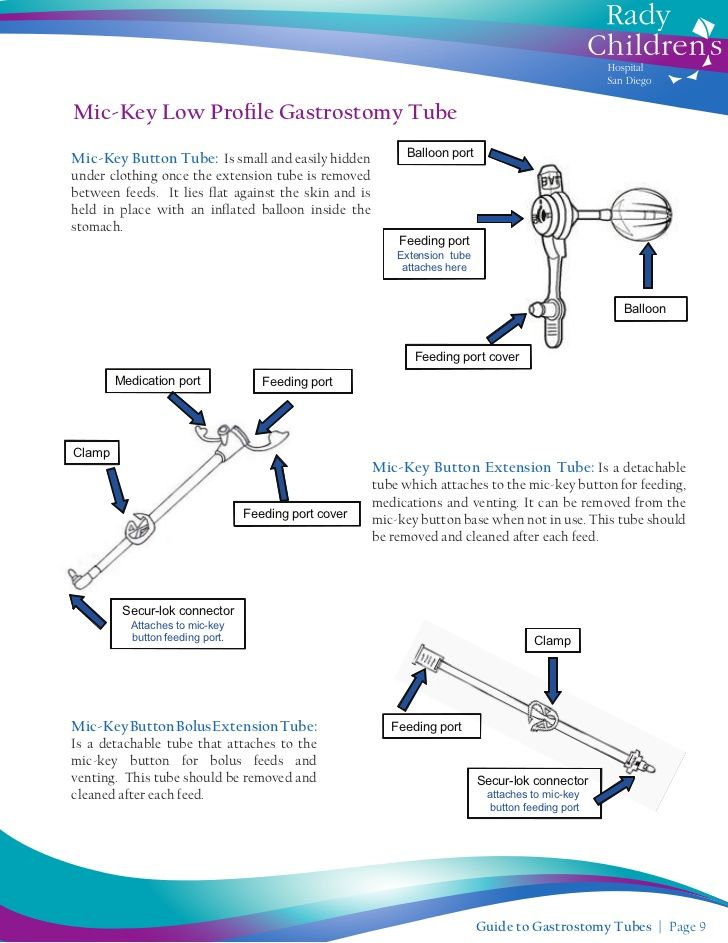 Mickey Feeding Tube Guide To Gastrostomy Tubes Nursing