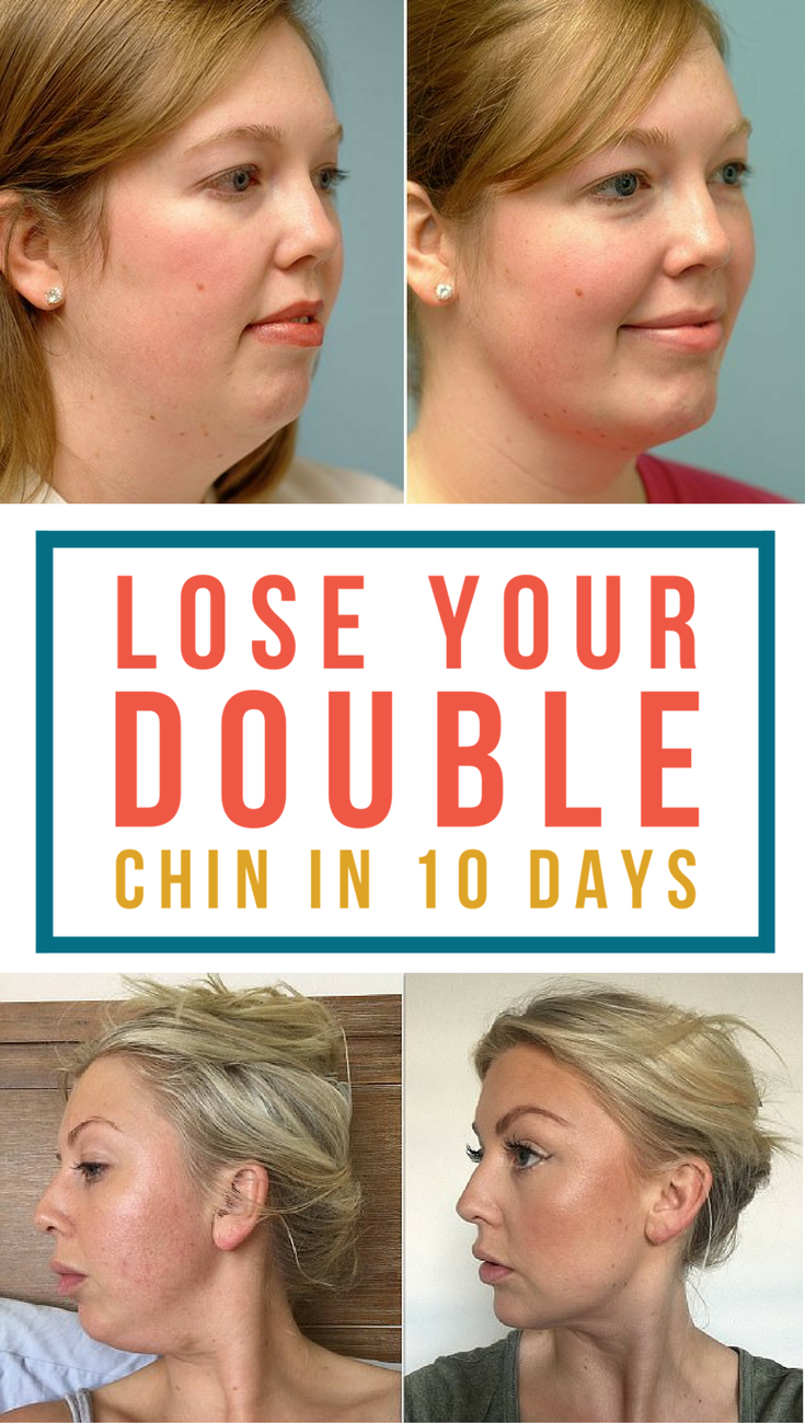 home remedies and facial exercise to get rid of double chin