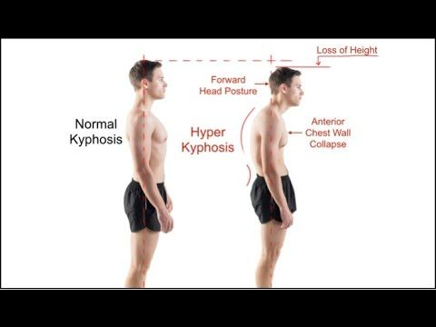 Mayo Clinic WARNING on Forward Head Posture Causes Pinched ...