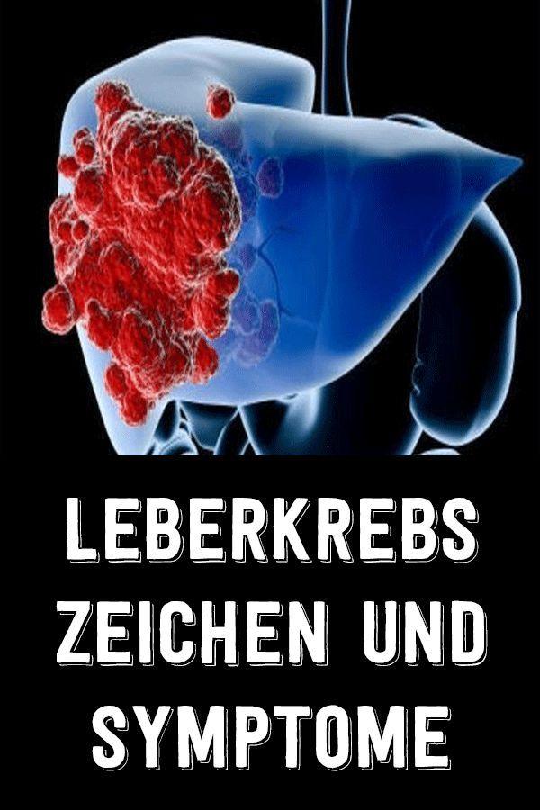 Leberkrebs Zeichen und Symptome in 2020 | Leberkrebs ...