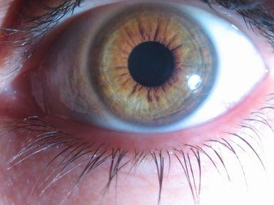 "IRIDOLOGY You may have heard the saying, ""the eyes are the windows of the soul"". Iris diagnosis, or iridology , is a means of assessing the health of a body through a detailed observation of..."