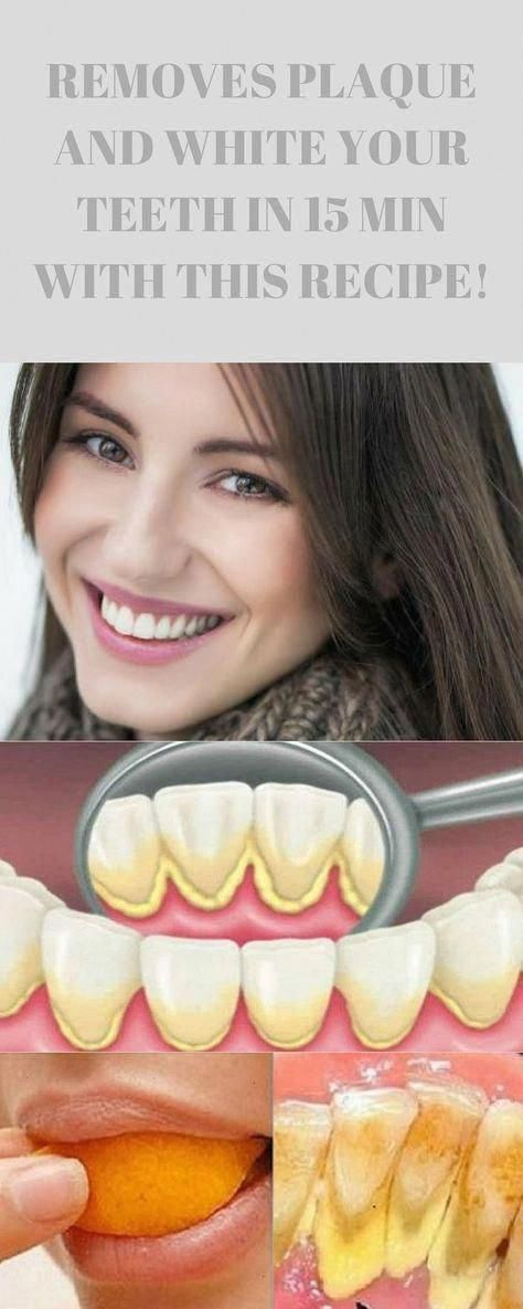 Removes Plaque And White Your Teeth In 15 Min With This Recipe That A Dentist Ev...,  #dental #dentaladvice #dentalcare #dentalhealth #Dentist #healthcare #Min #plaque #Recipe #Removes #Teeth #White, #HowToCareForOralHealth #HowToOralCare #WhoOralCare