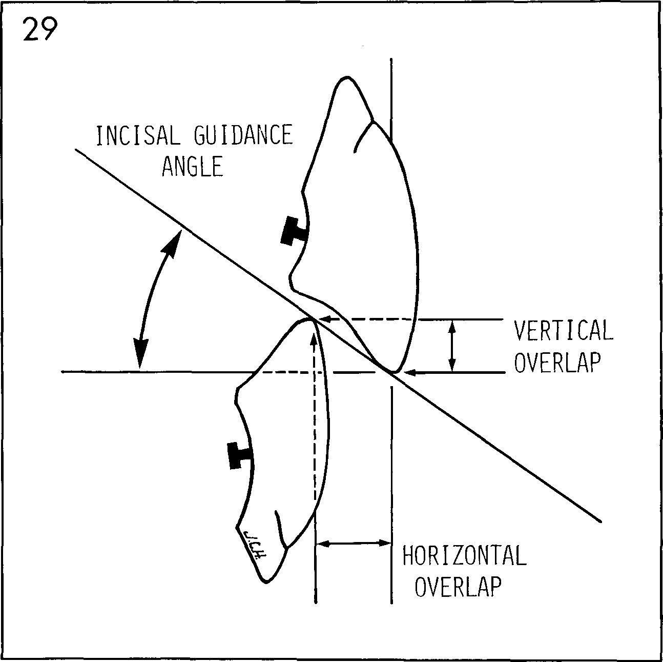 Incisal guidance angle에 대한 이미지 검색결과 | dental | pinterest.