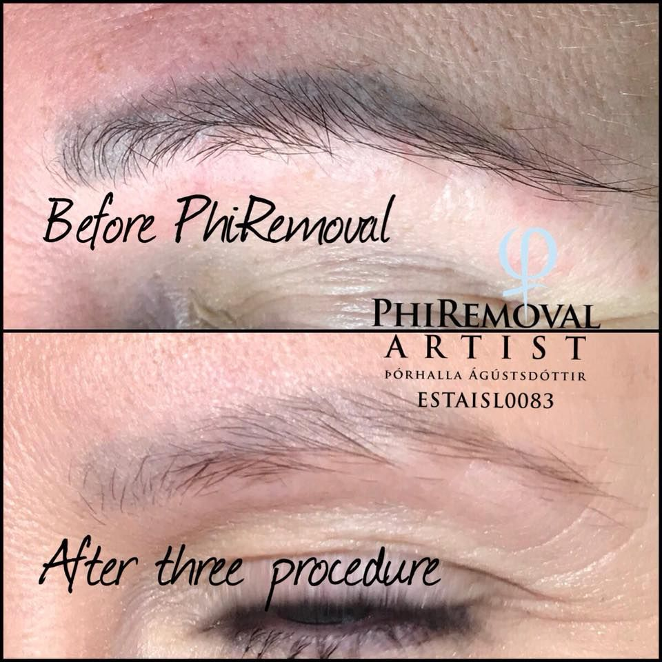 Eyebrows removal procedure by Þórhalla Ágústsdóttir | Eyebrows ...