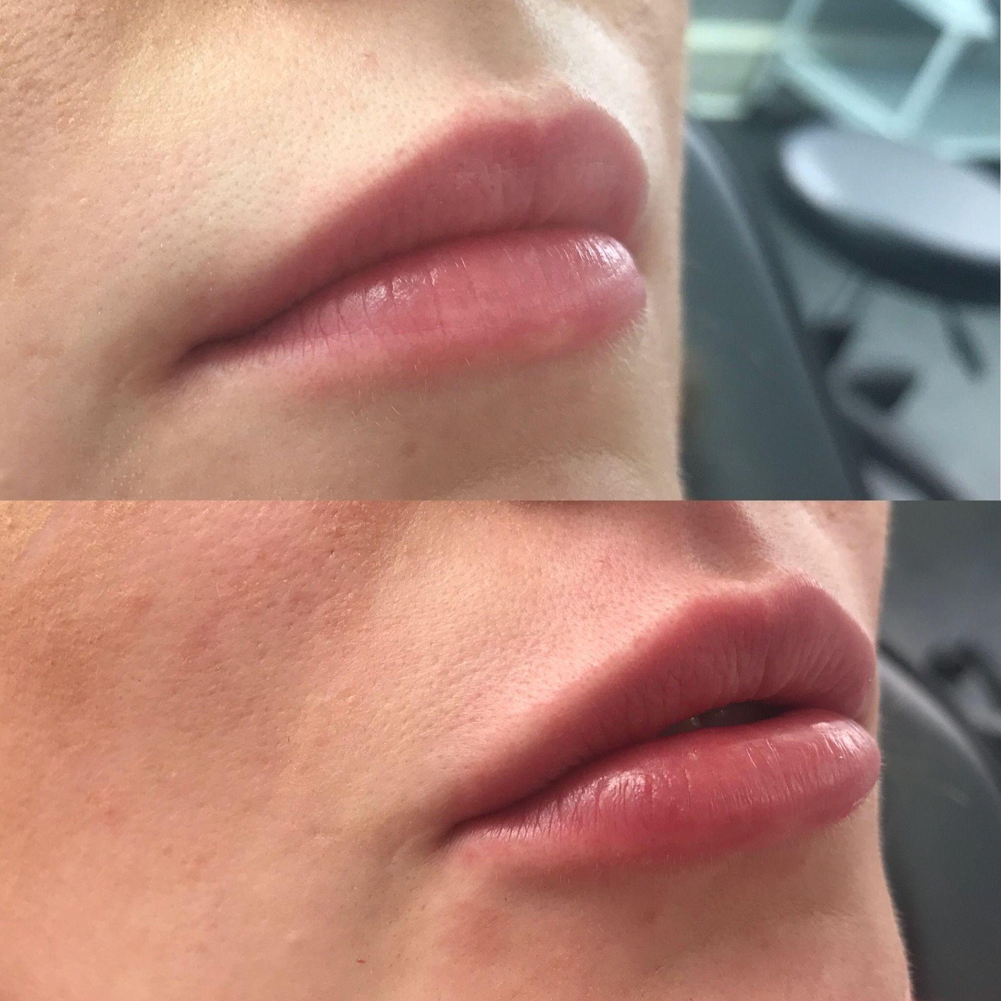 Swelling under nose piercing  Hollie Houston Lip fillers Permanent Make Up Lips created by Hollie