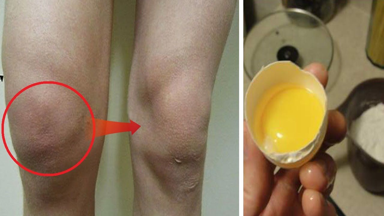 f0d2ae4a15a24fbffd261dd786a8144c - How To Get Rid Of Swelling And Fluid In Knee