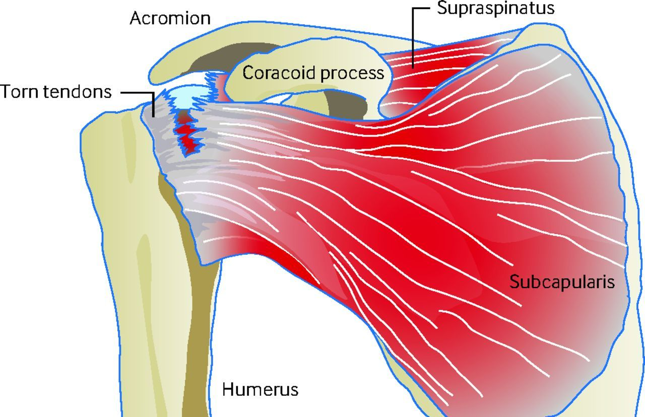 medium resolution of diagram of shoulder tendons diagram of shoulder tendons acute rotator cuff tears the bmj