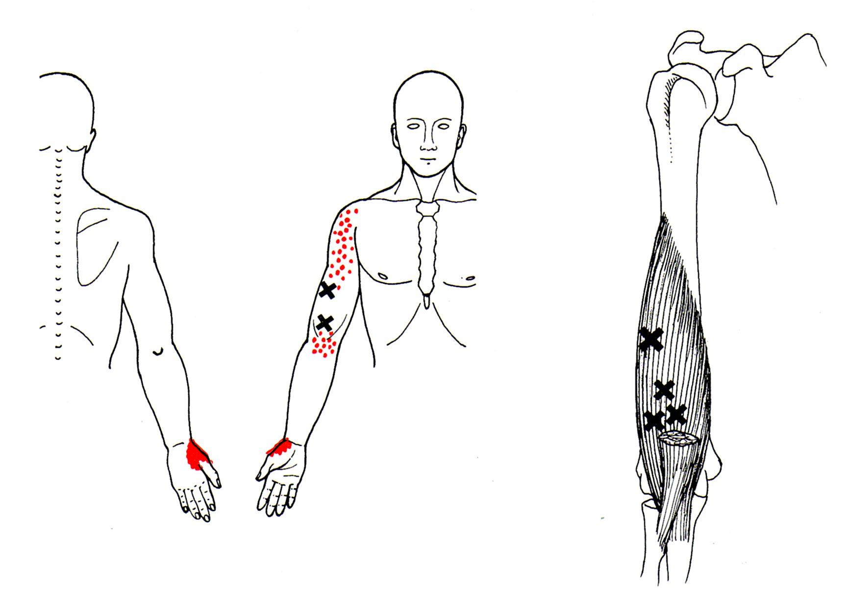 Starker Oberarmmuskel | The Trigger Point & Referred Pain Guide ...