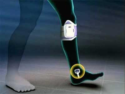Functional Electrical Stimulation Device Google Search