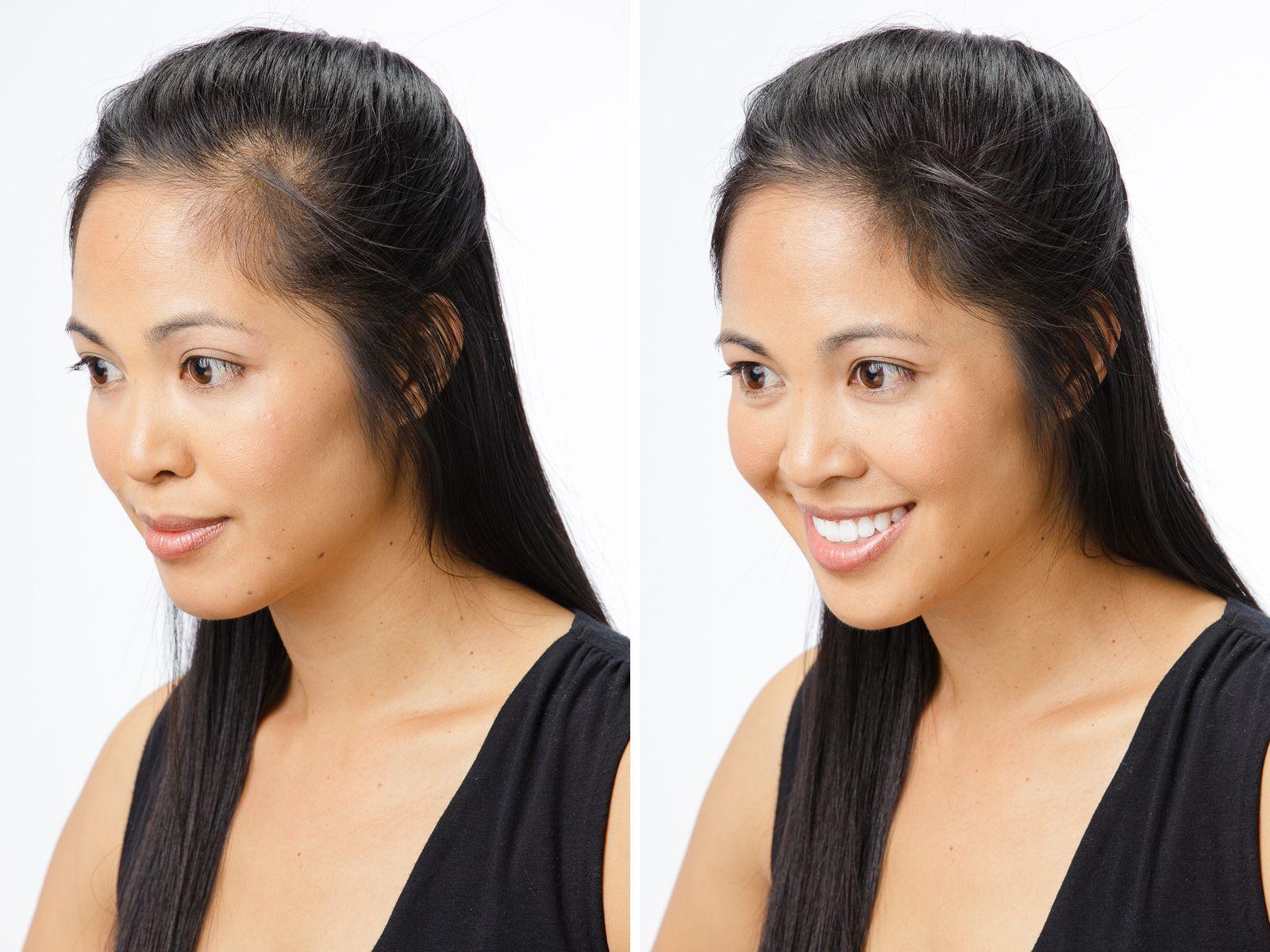 Hair Restoration From