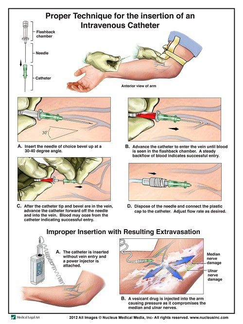 50 IV Therapy Tips and Tricks: How to Hit the Vein in One Shot ...