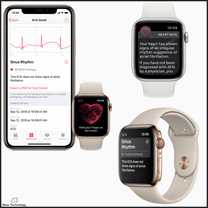 Apple Watch gets lifesaving ECG app and more in India