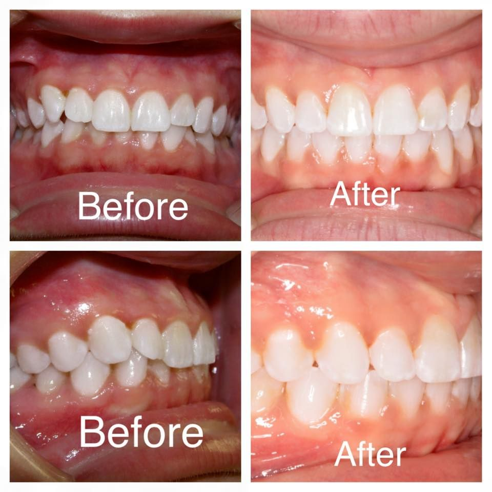 Braces Worked Wonderfully As We Corrected This Patient S Deepbite At Amanda Gallagher Orthodontics Agortho Orthodontics Amanda This Is Us