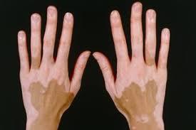 Vitiligo - NHS