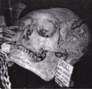 Nephilim Skelett
