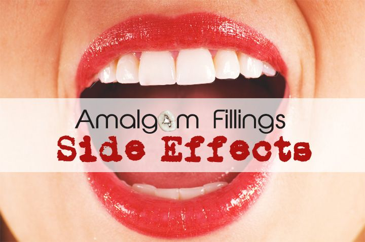 Mercury amalgam fillings side effects can be severe