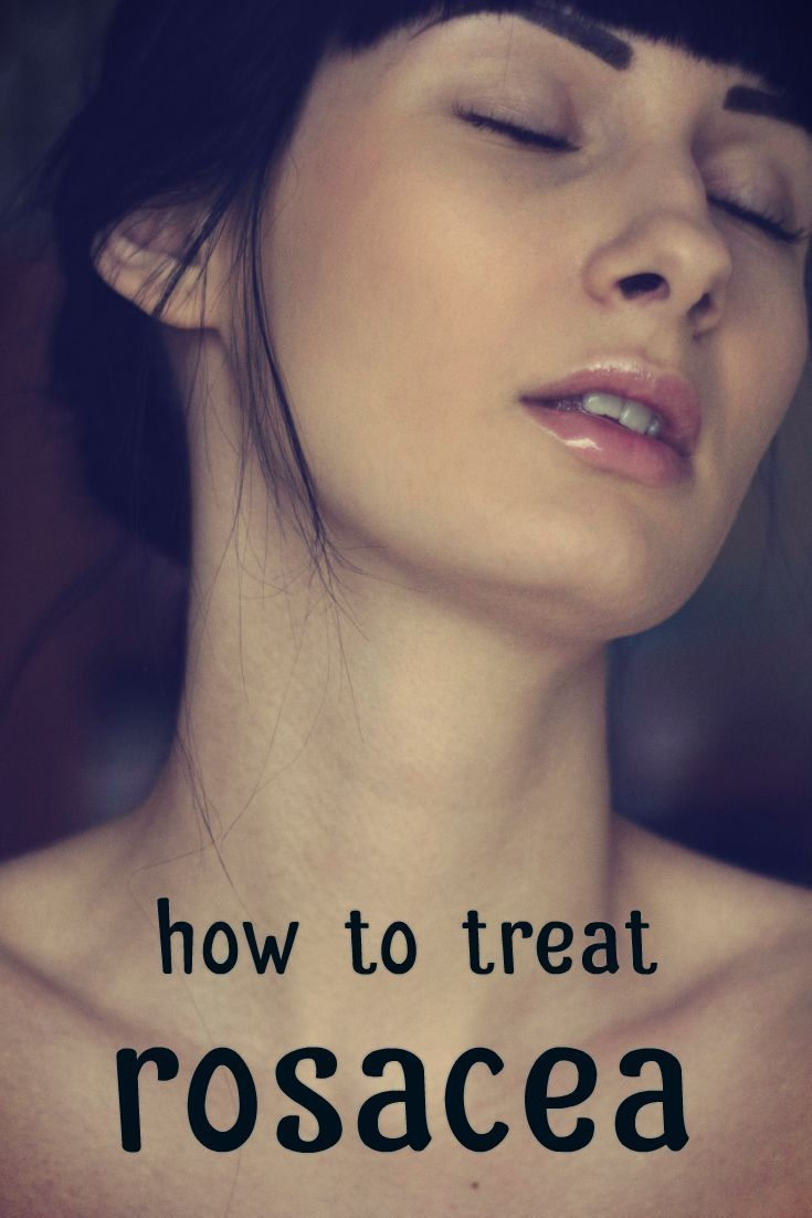 Acne Rosacea Treatment Rosacea acne treatment, Skin care