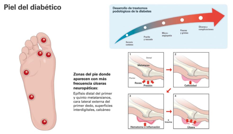 hematoma en diabeticos