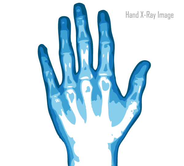 Free Vector X Ray Hand Image Vector Free Hand Images Free Vector Art