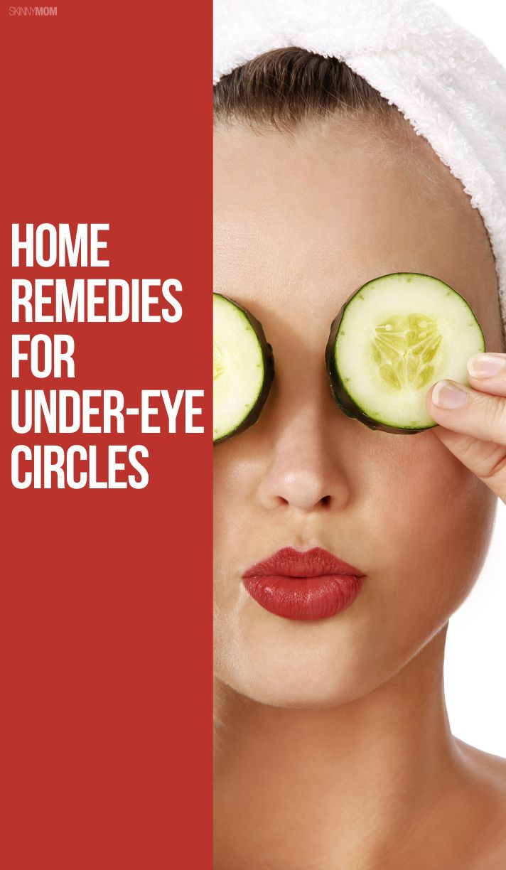 DIY Remedies for Curing Dark Under-Eye Circles (With ...