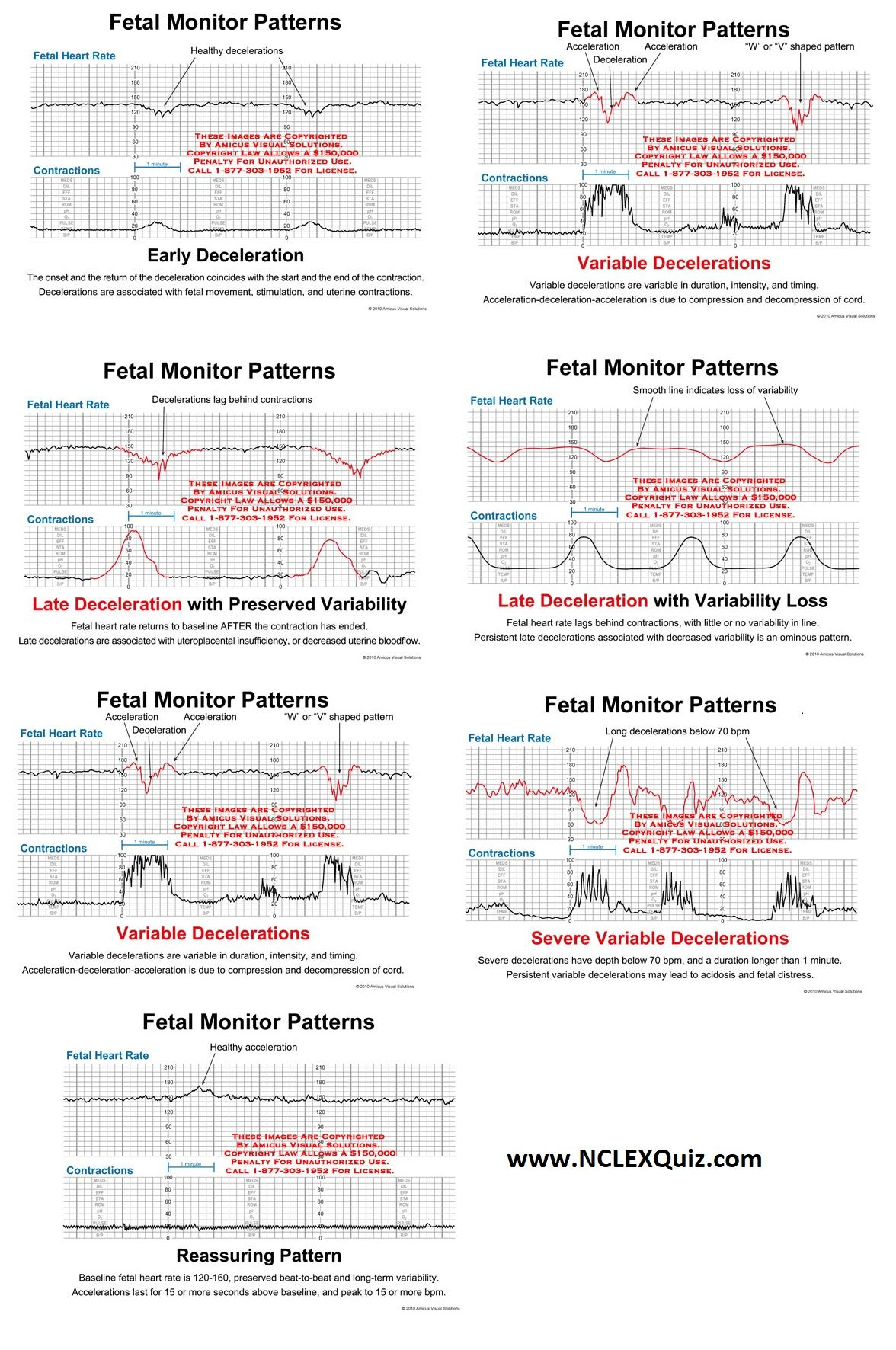 Interpretation of the Electronic Fetal Heart Rate During Labor ...