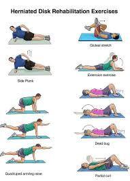 resultado de imagen de spondylolisthesis exercises