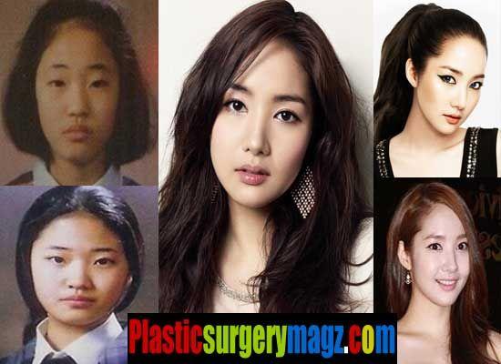 Park Min Young Plastic Surgery Kpop Plastic Surgery In 2019 Park
