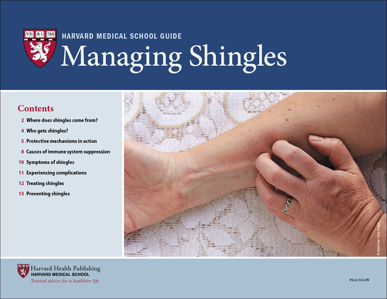 Managing Shingles Harvard health, Treating shingles