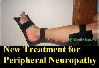 New Treatment for Peripheral Neuropathy ~ MediMiss