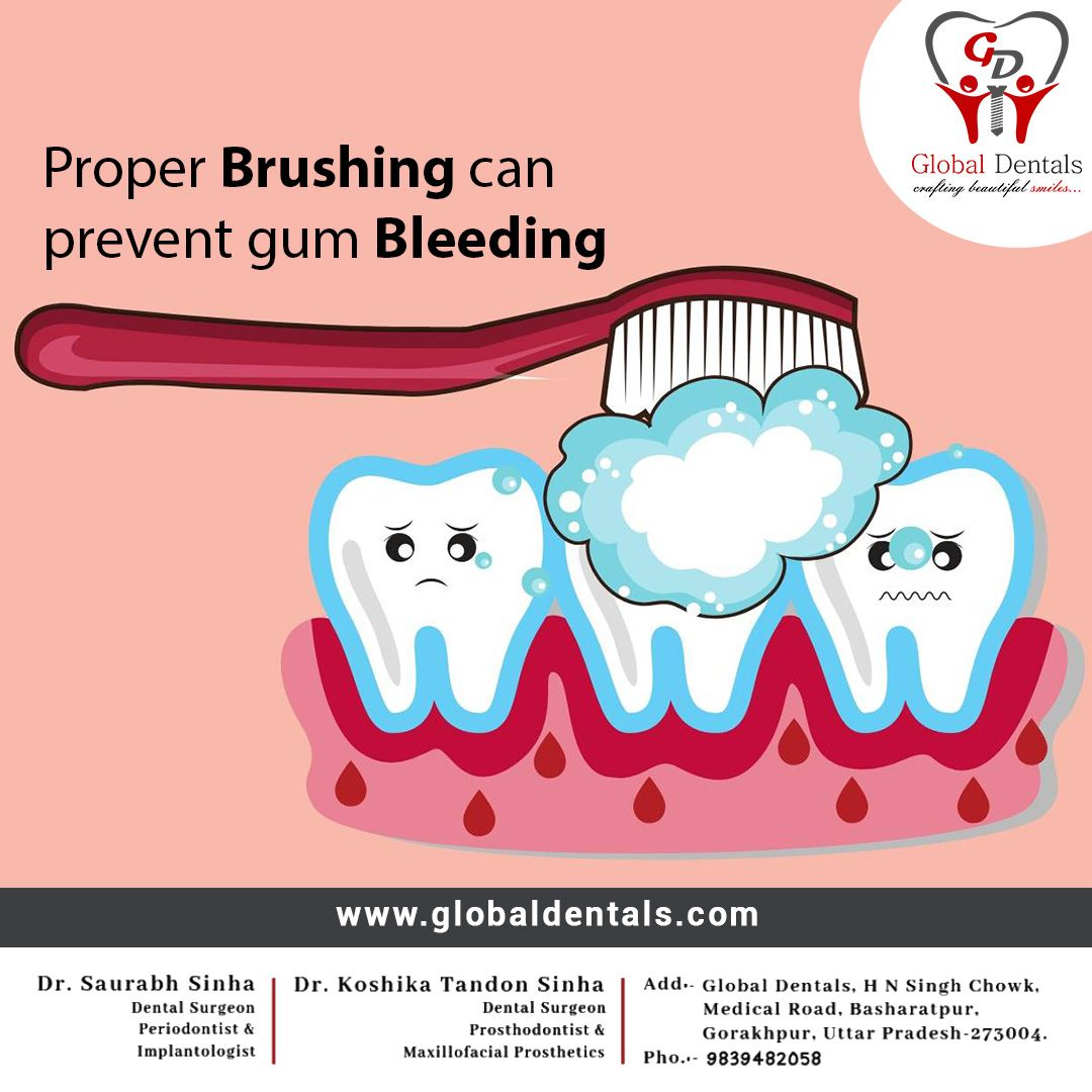 Proper brushing can prevent gums bleeding and helps to