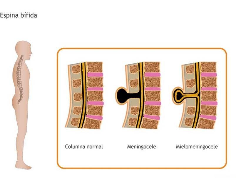 espina bifida - Buscar con Google | Mielomeningocele | Pinterest ...