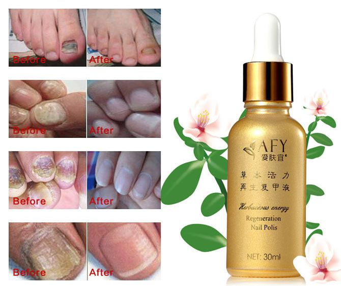 AFY Fungal Nail Treatment TCM Essence Oil Hand and Foot Whitening ...