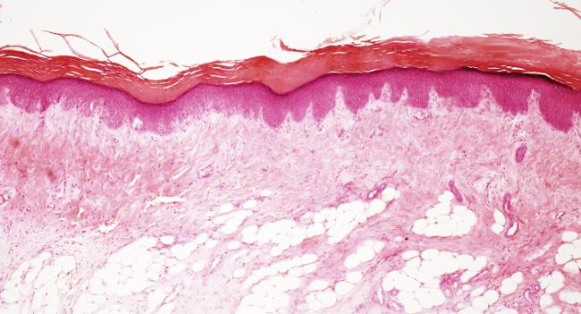 Piel rata hematoxilina y eosina   What a wonderful histology ...