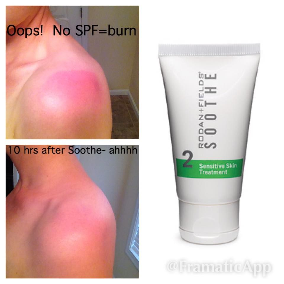 Here S A Relief For Treating Sunburn Minor Burns Rashes Scrapes Skin Irritations Sunb Sensitive Skin Treatment Sensitive Skin Care Rodan And Fields Soothe