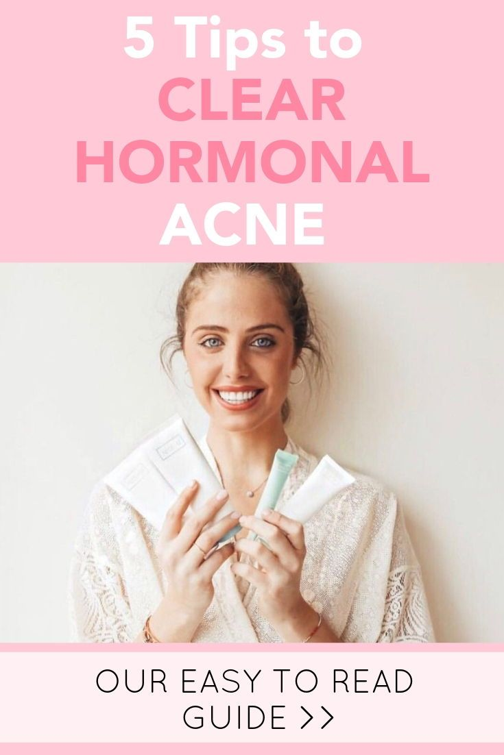 5 tips to clear hormonal acne hormonal acne hormones acne