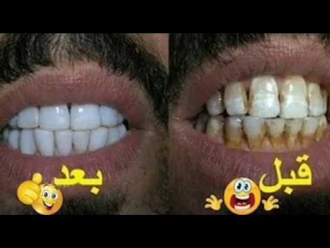 مذهلللل تبيض الأسنان خلال دقيقتين فقط خلطه يابانيه طبيعيه منزليه فعاله Beauty Skin Care Routine Alternative Medicine Beauty Skin Care