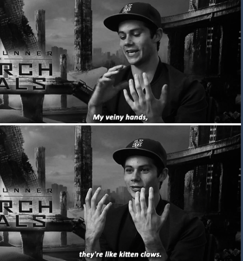"""Dylan O'Brien about his most distinctive feature 