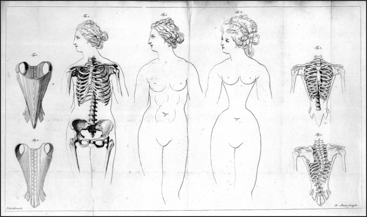 Distortions of the female rib-cage caused by corset (1793)