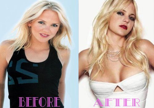 Celebrity Breast Implants Before And After Pictures ...