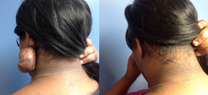 Keloid Removal Before And After By Dr Eric Khairalla At Lexington