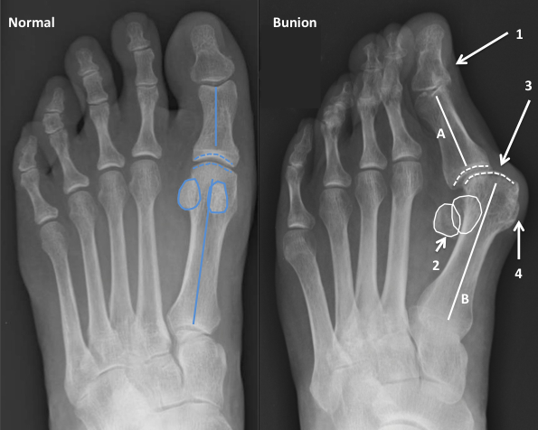 X Ray Demonstrating The Changes Associated With A Bunion Compared