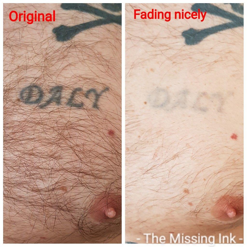 Chest Tattoo In 2020 Laser Tattoo Removal Tattoo Removal Laser Tattoo