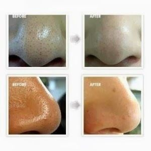 clay mask that pulls out blackheads