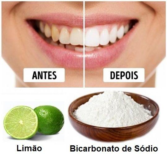 Dentes Claros Limao E Bicarbonato De Sodio Em Um Molde Nos Dentes