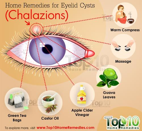 How To Get Rid Of Cysts On Your Eyelid