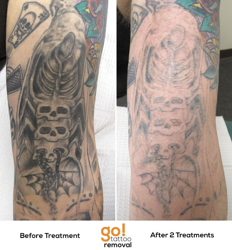 After 2 laser tattoo removal treatments we 39 ve removed for Post laser tattoo removal