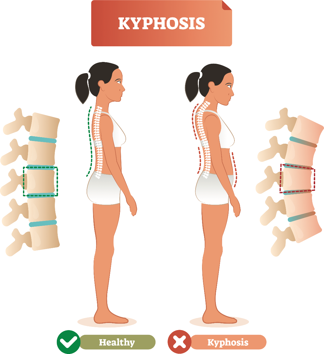 How To Treat Your Kyphosis Exercises And Supports