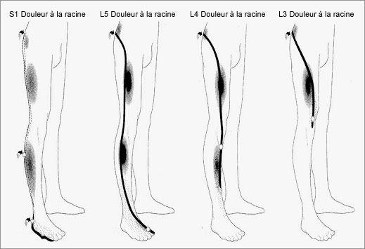 Sciatique et cruralgie fibromyalgie douleurs chroniques for Douleur au genou gauche interieur