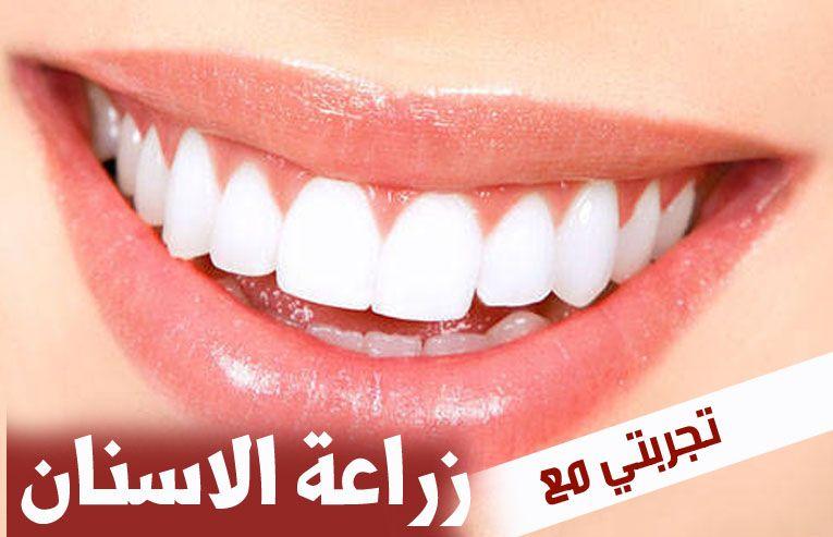 تجربتي مع زراعة الاسنان Blog Posts Blog