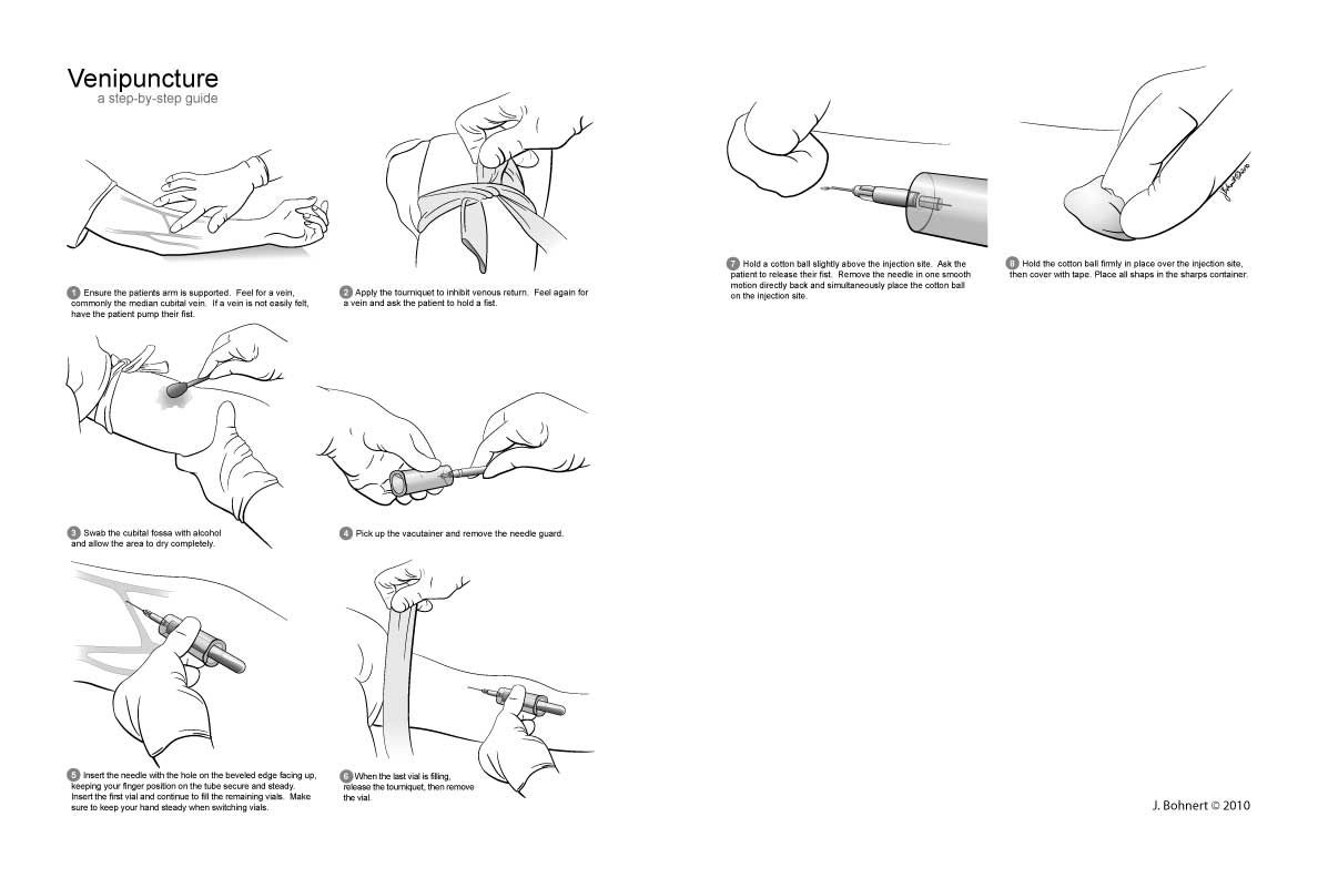 Venipuncture Procedure Steps